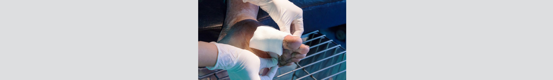 Infected wound, patient man foot