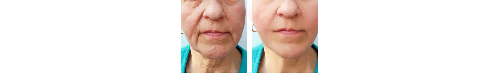 face of an elderly woman wrinkles face before and after procedures